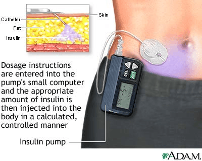 insulin pumps selection guide