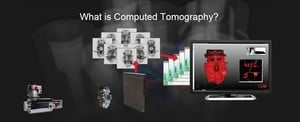 What is Computed Tomography?-Image