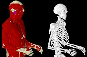 VariPose Biological Mesh Repositioning Software-Image