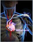 Nano Generator Powers Pacemaker