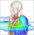 CST Webinar: Multiphysics Simulation for Medical Applications