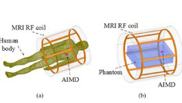 A Transmission Line Model for the Evaluation of MRI RF-Induced Fields on Active Implantable Medical Devices