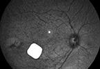 French Regulators Approve Human Trial of a Bionic Eye